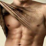 Men laser hair removal