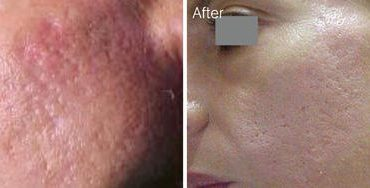 Botox Injections Save Up to 70% off